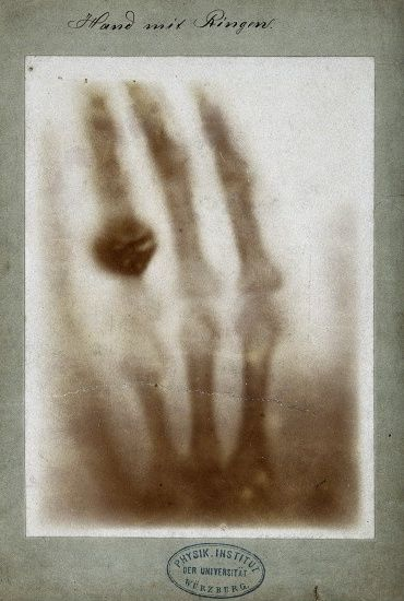 One of the first X-ray images of Roentgen's wife's hand