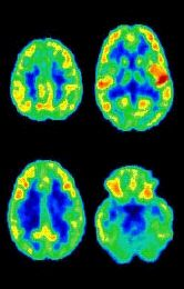 PET scan of human brain at four heights